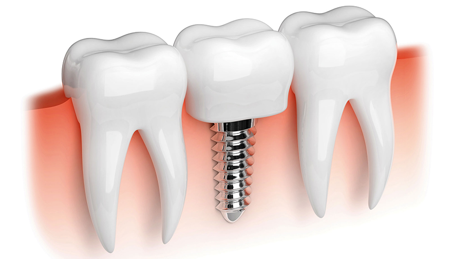 precio de implantes dentales en el salvador